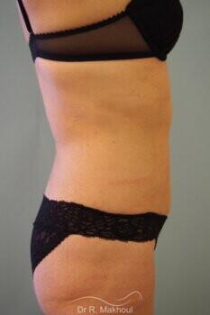 Liposuccion de l'abdomen vue de profil apres