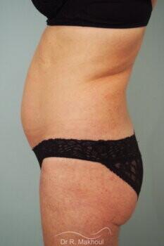 Liposuccion de l'abdomen vue de profil avant