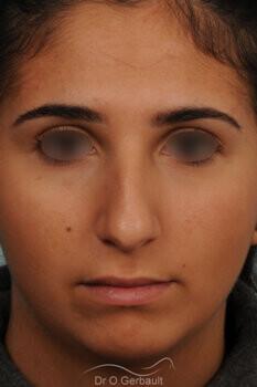 Nez bossu et menton en retrait vue de face avant