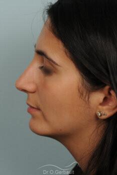 Nez bossu et menton en retrait vue de profil apres