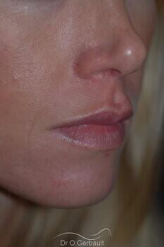 Augmentation des lèvres par acide hyaluronique vue de dos apres