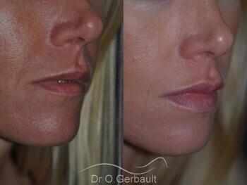 Augmentation des lèvres par acide hyaluronique vue de dos avant-apres