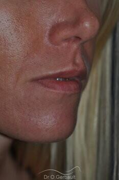 Augmentation des lèvres par acide hyaluronique vue de dos avant