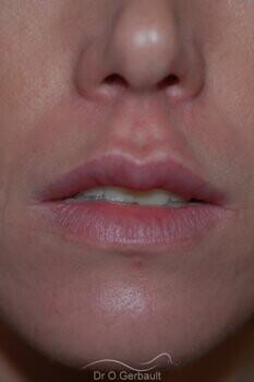 Augmentation des lèvres par acide hyaluronique vue de face apres