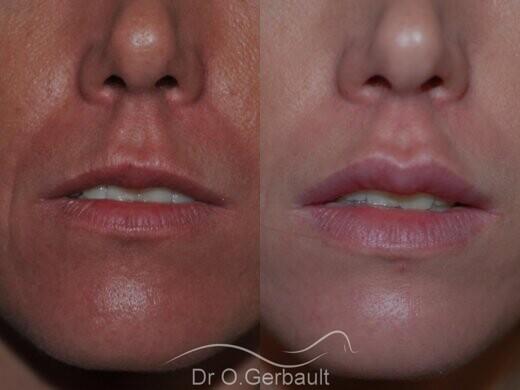Augmentation des lèvres par acide hyaluronique vue de face avant-apres