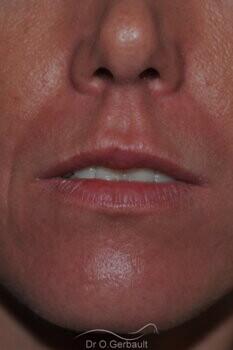 Augmentation des lèvres par acide hyaluronique vue de face avant