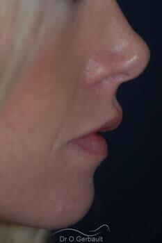 Augmentation des lèvres par acide hyaluronique vue de profil apres