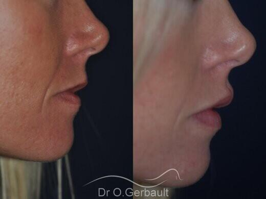 Augmentation des lèvres par acide hyaluronique vue de profil avant-apres