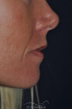 Augmentation des lèvres par acide hyaluronique vue de profil avant