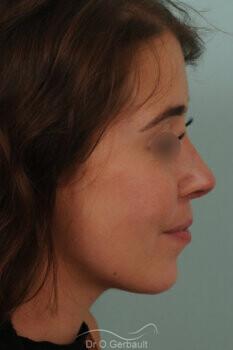Nez trop raccourci, pointe trop remontée, rétraction des ailes du nez vue de profil apres