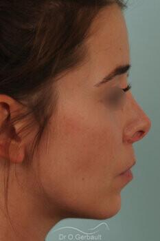 Nez trop raccourci, pointe trop remontée, rétraction des ailes du nez vue de profil avant