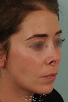 Nez trop raccourci, pointe trop remontée, rétraction des ailes du nez vue de quart avant