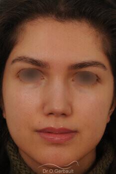 Nez avec bosse et pointe large sur peau épaisse vue de face apres