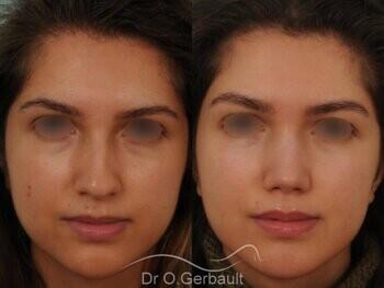 Nez avec bosse et pointe large sur peau épaisse vue de face avant-apres