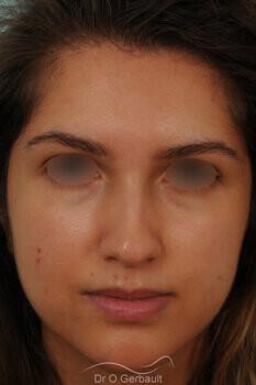 Nez avec bosse et pointe large sur peau épaisse vue de face avant