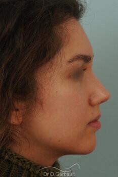 Nez avec bosse et pointe large sur peau épaisse vue de profil apres
