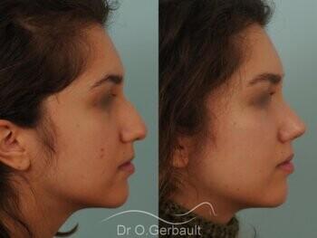 Nez avec bosse et pointe large sur peau épaisse vue de profil avant-apres
