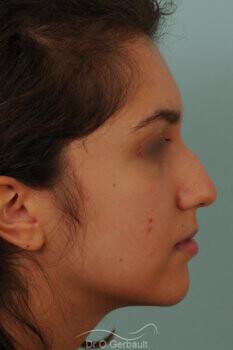 Nez avec bosse et pointe large sur peau épaisse vue de profil avant