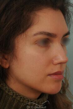 Nez avec bosse et pointe large sur peau épaisse vue de quart apres