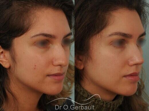 Nez avec bosse et pointe large sur peau épaisse vue de quart avant-apres