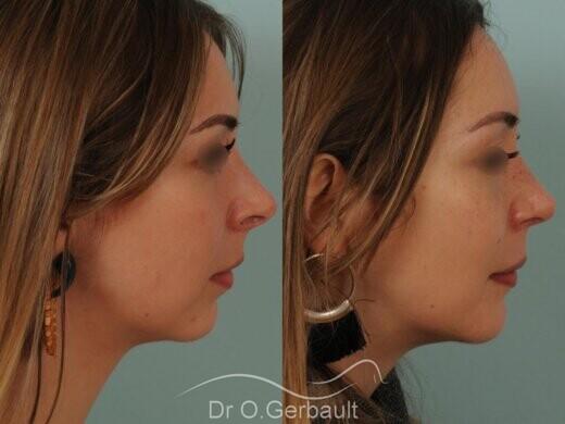 Nez trop projeté, visibilité des orifices narinaires avec ailes du nez larges vue de face avant-apres