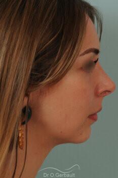 Nez trop projeté, visibilité des orifices narinaires avec ailes du nez larges vue de profil avant