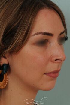 Nez trop projeté, visibilité des orifices narinaires avec ailes du nez larges vue de quart avant