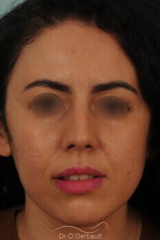 Rhinoplastie sur nez trop court avec pointe ronde, légère bosse et déviation septale vue de face apres
