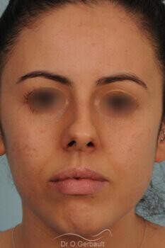 Rhinoplastie sur nez trop court avec pointe ronde, légère bosse et déviation septale vue de face avant
