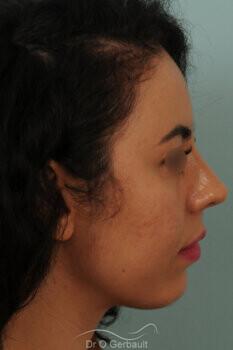 Rhinoplastie sur nez trop court avec pointe ronde, légère bosse et déviation septale vue de profil apres