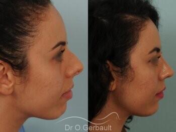 Rhinoplastie sur nez trop court avec pointe ronde, légère bosse et déviation septale vue de profil avant-apres