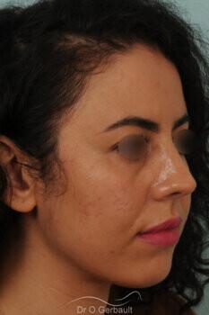 Rhinoplastie sur nez trop court avec pointe ronde, légère bosse et déviation septale vue de quart apres