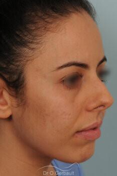 Rhinoplastie sur nez trop court avec pointe ronde, légère bosse et déviation septale vue de quart avant