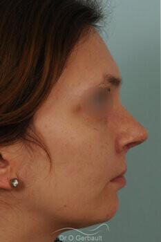 Fente labio-palatine vue de face apres