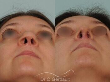 Fente labio-palatine vue de face avant-apres