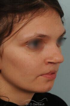 Fente labio-palatine vue de face avant