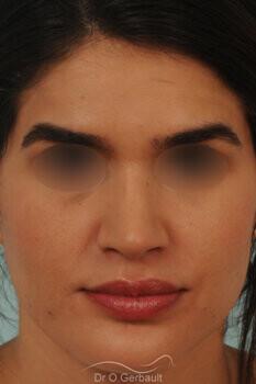Nez large et long au sourire vue de face apres