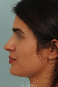 Nez large et long au sourire vue de profil apres
