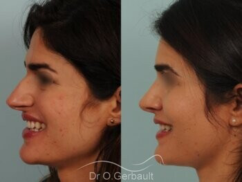 Nez large et long au sourire vue de profil avant-apres