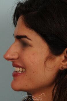 Nez large et long au sourire vue de profil avant