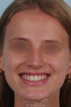 Nez asymétrique avec déviation de la cloison nasale vue de face apres