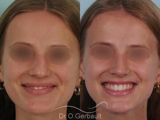Nez asymétrique avec déviation de la cloison nasale vue de face avant-apres