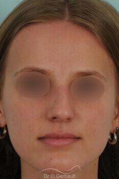 Nez asymétrique avec déviation de la cloison nasale vue de face avant