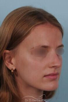 Nez asymétrique avec déviation de la cloison nasale vue de quart apres