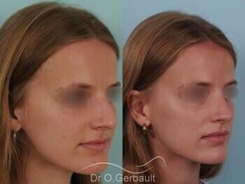 Nez asymétrique avec déviation de la cloison nasale vue de quart avant-apres