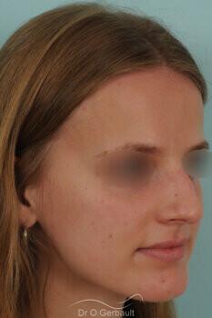 Nez asymétrique avec déviation de la cloison nasale vue de quart avant