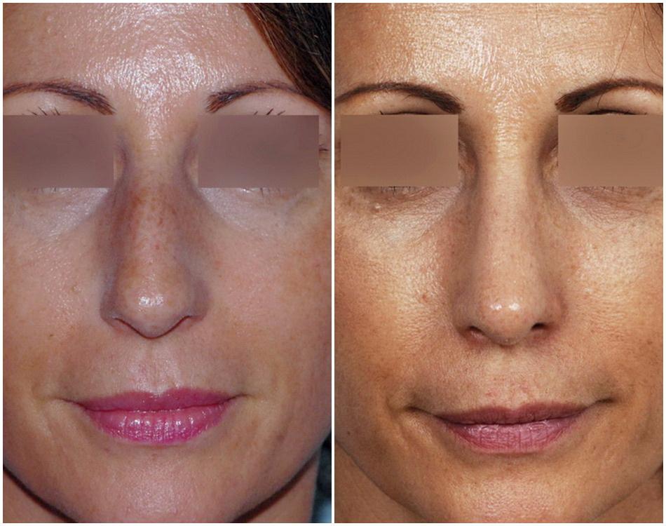 Bosse sur le nez refaire son nez rhinoplastie ultrasonique - Bosse sur le nez apres coup ...