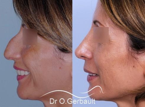 Bosse sur le nez rhinoplastie primaire refaire son nez rhinoplastie ultrasonique - Bosse sur le nez apres coup ...