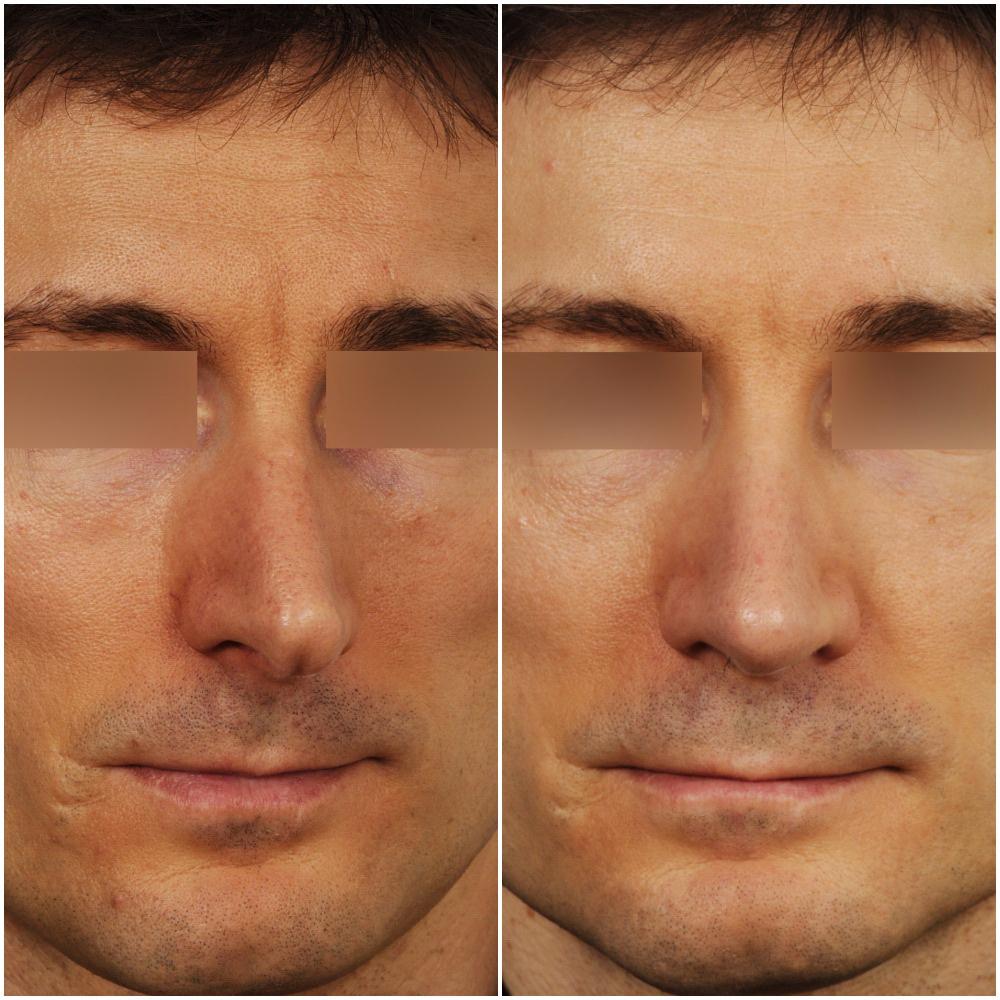 D viation de la cloison nasale dr gerbault for Fixer nez de cloison