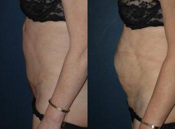 abdominal-plasty-2_8457_duologo